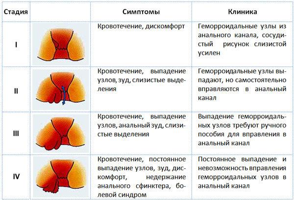 Геморрой - симптомы заболевания