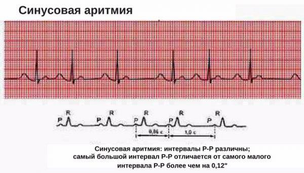 Аритмия на электрокардиограмме