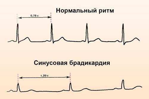 Синусоидальная брадикардия