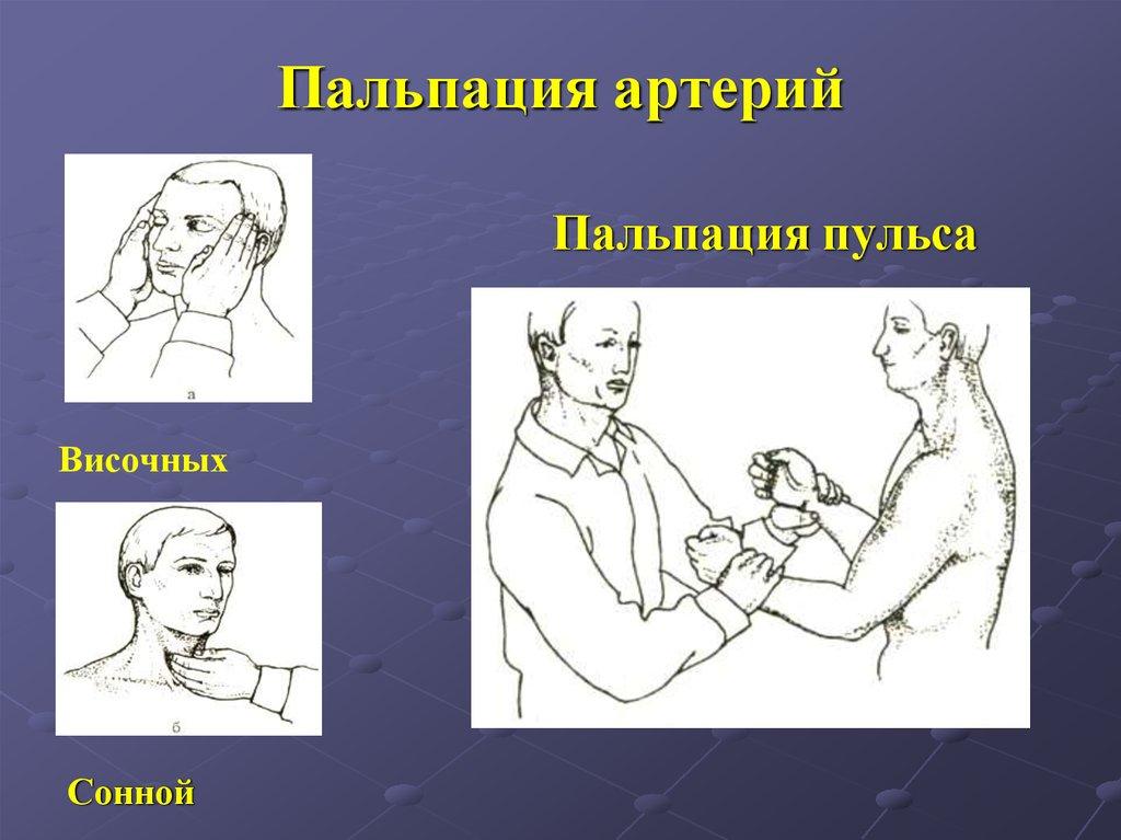 Пальпация артерий