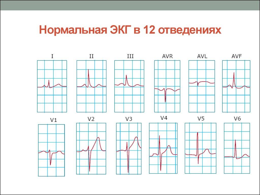 Нормальная ЭКГ в 12 отведениях