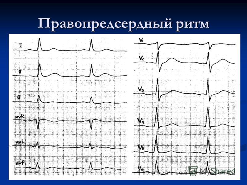 Правопредсердный тип сердцебиения