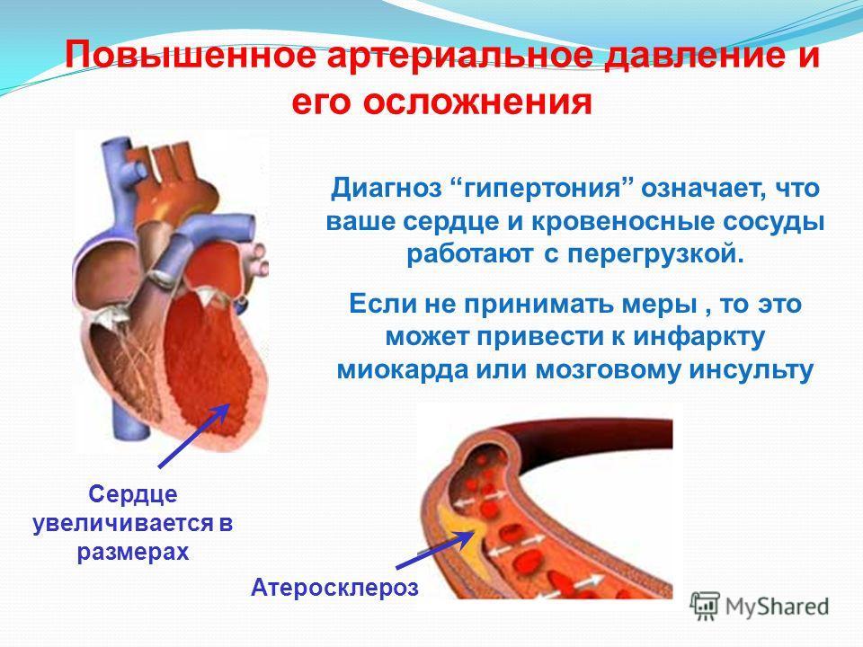 Осложнения гипертензии