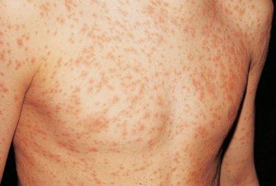 Аллергическая сыпь