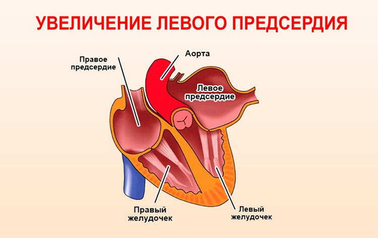 Гипертрофия предсердной камеры слева
