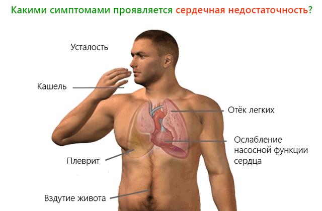 Симптомы при застойной сердечной недостаточности