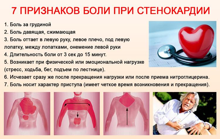 Симптоматика стенокардии