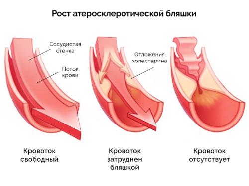 Рост атеросклеротической бляшки