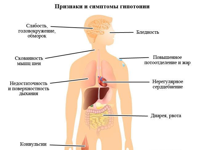 Симптоматика пониженного АД