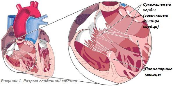 Симптомы разрыва стенки сердца