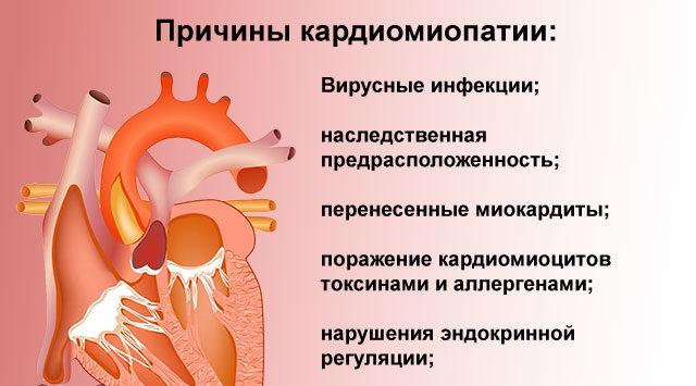 Причины кардиомиопатии
