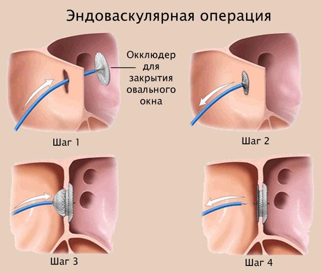 Эндоваскулярная операция по закрытию ОО в сердце