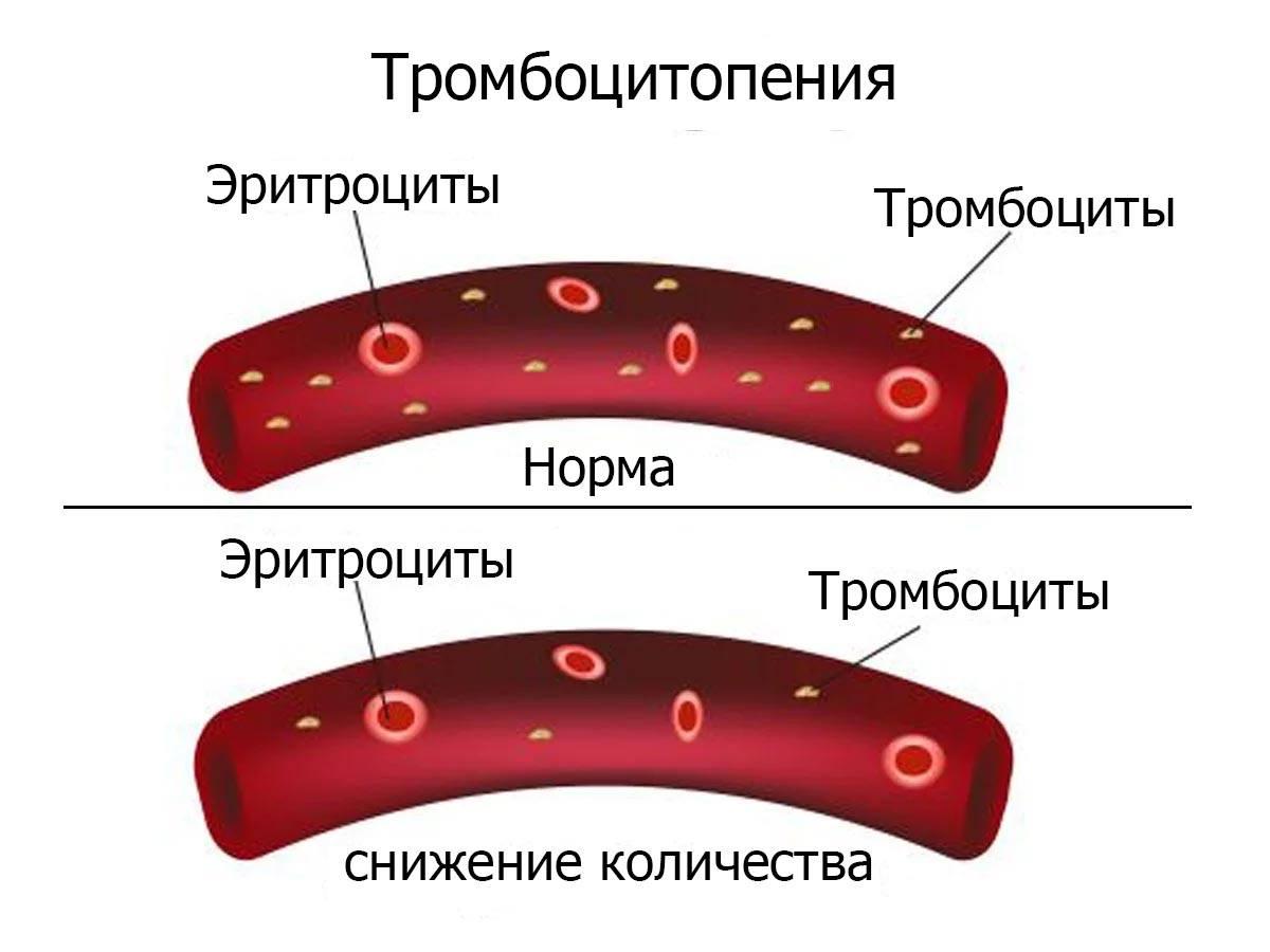 Тромбопения