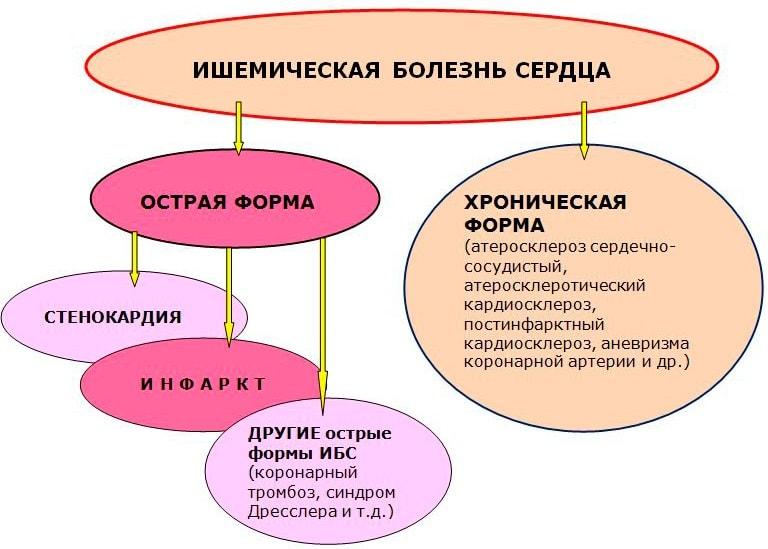 Формы ИБС