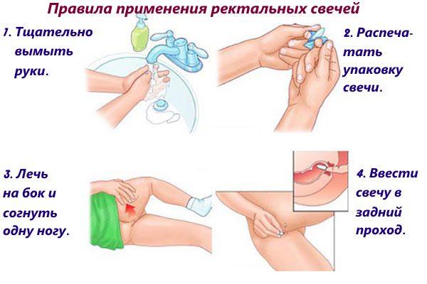 Правила ввода ректальных суппозиториев
