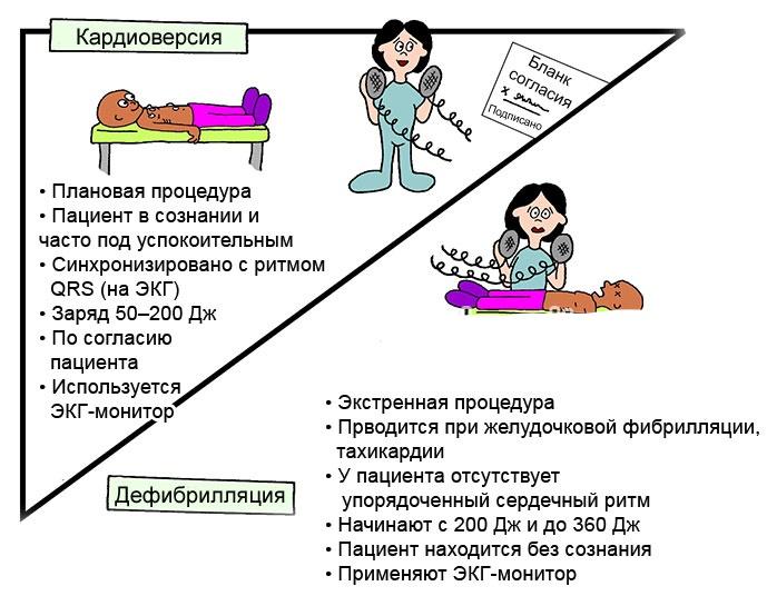 Процедура дефибрилляции