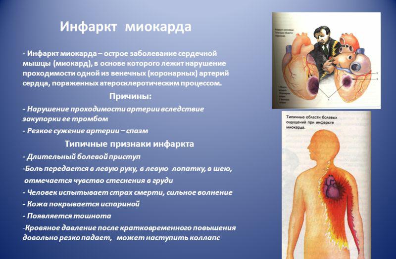 Причины и симптомы ИМ