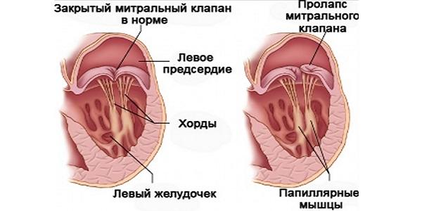 Пролапс клапана