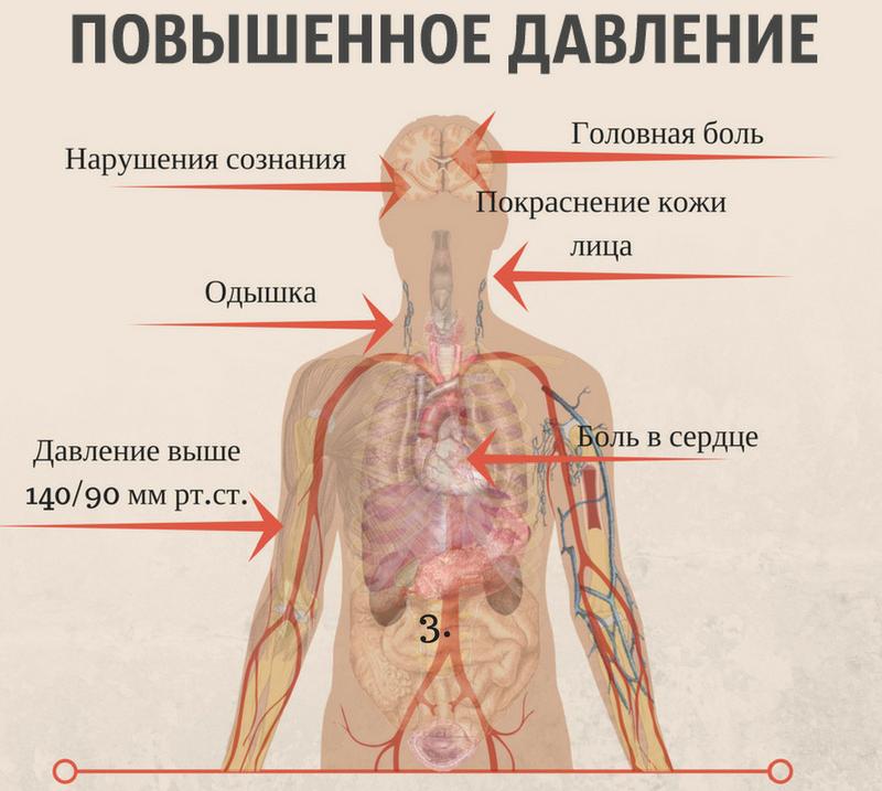 Симптоматика повышенного АД