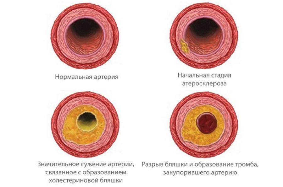 Холестериновые отложения на сосудах