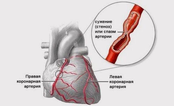 Спазм сосудов сердца