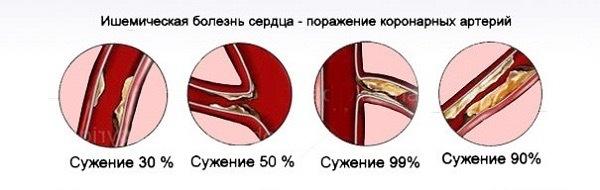 Сужение артерий при ИБС