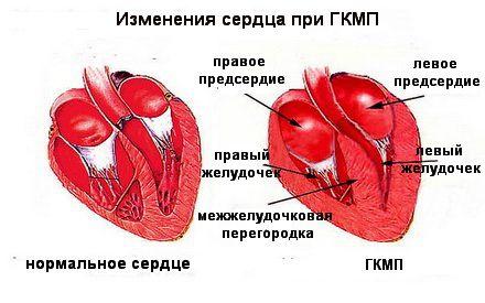 Изменение сердечной мышцы при ГКМП