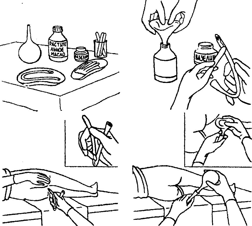 Процедура проведения