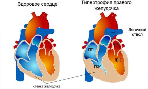 Патология правого желудочка