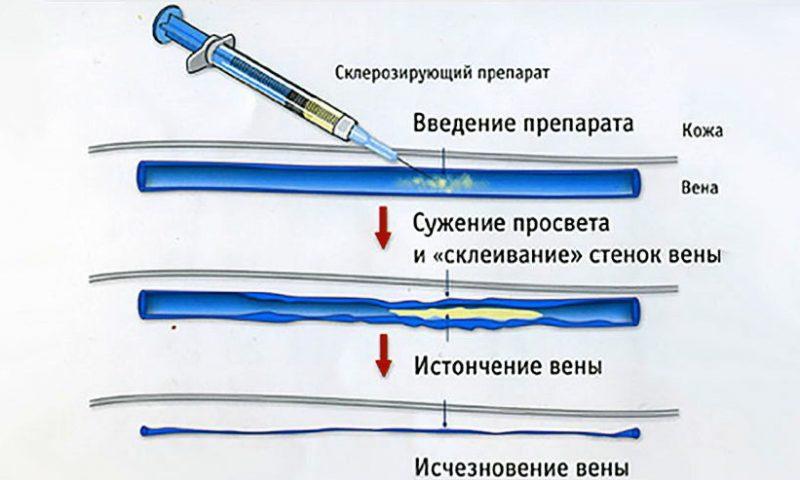 Методика склерозирования