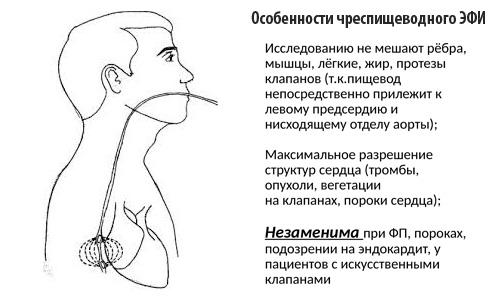 Особенности чреспищеводного ЭФИ