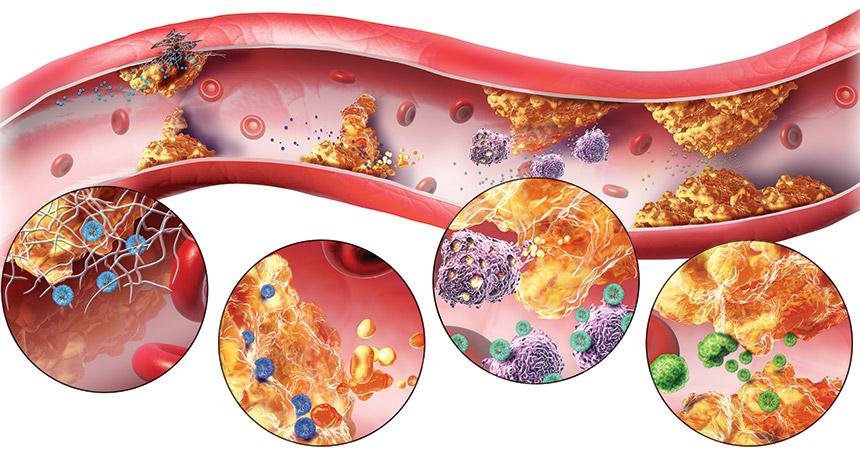 Атеросклеротические бляшки на сосудах
