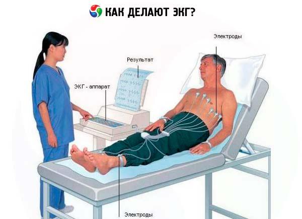 Методика проведения электрокардиографии