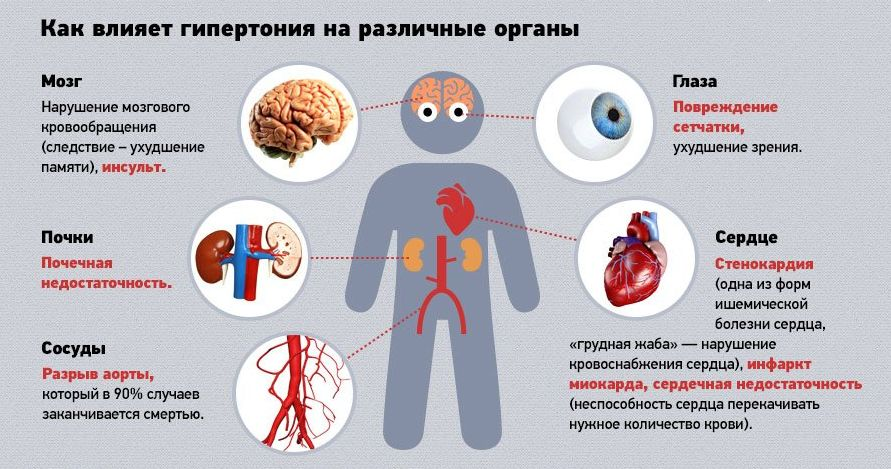 Осложнения гипертонической болезни