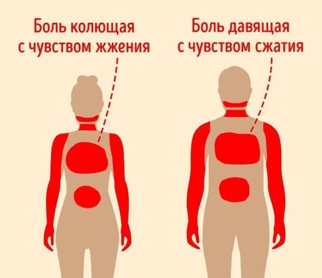 Отличие симптоматики СП у женщин и мужчин