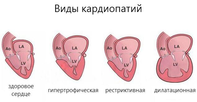 Разновидности кардиопатий