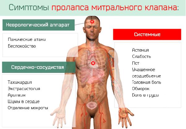Симптомы ПМК