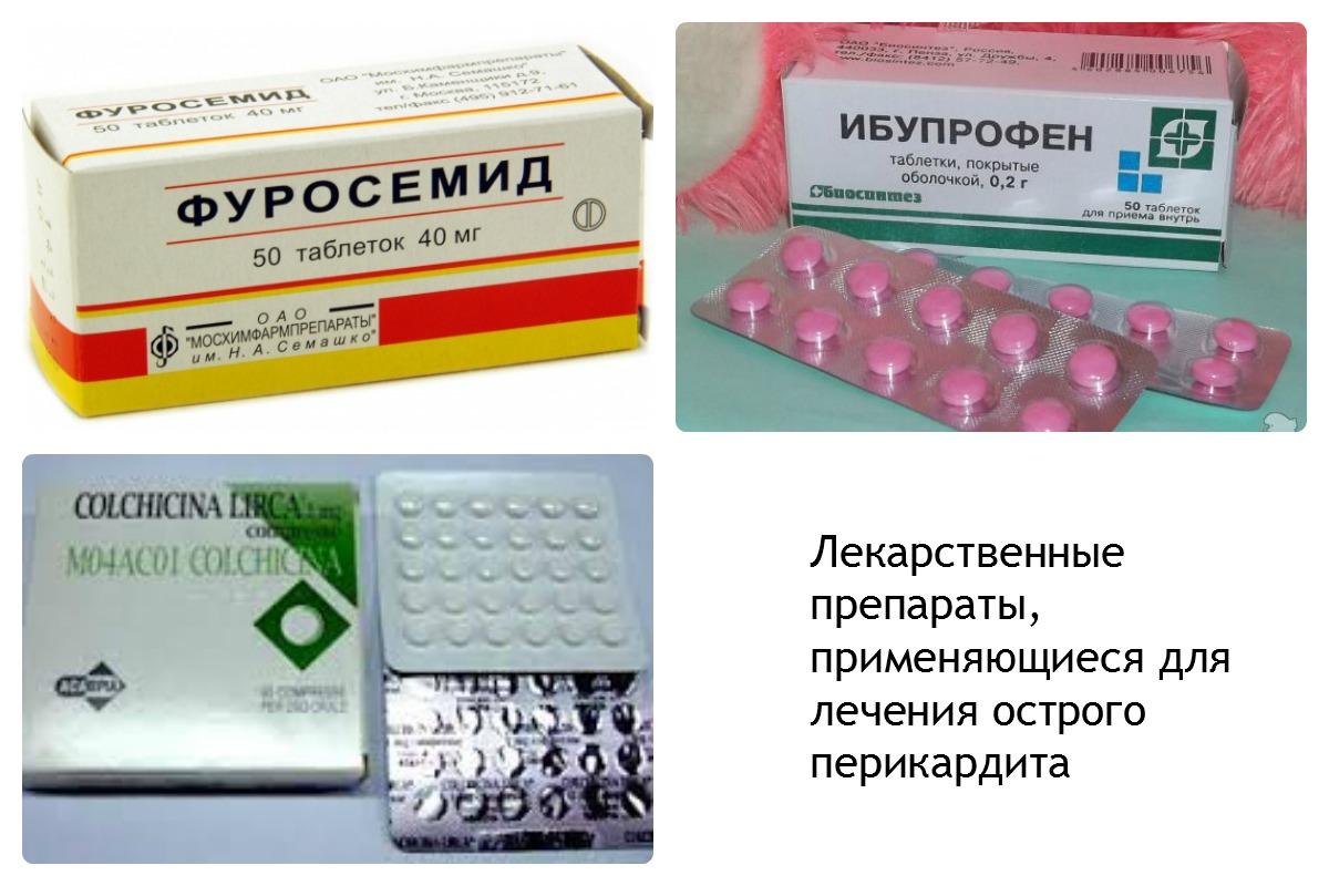 Лечение перикардита