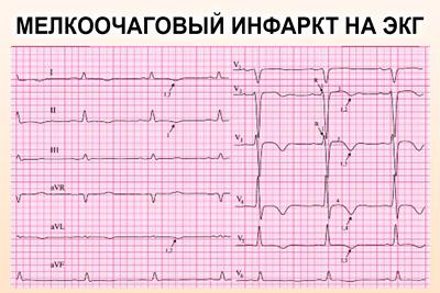 Мелкоочаговый ИМ на кардиограмме