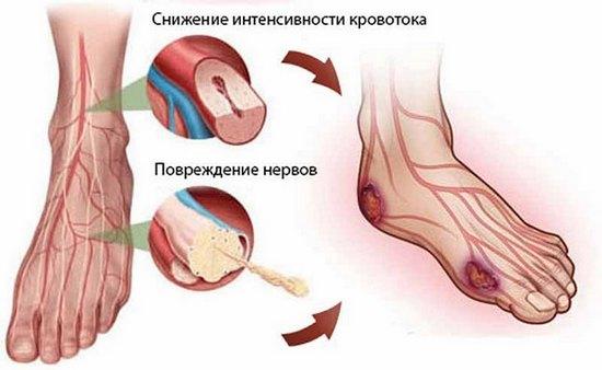 Микроангиопатия