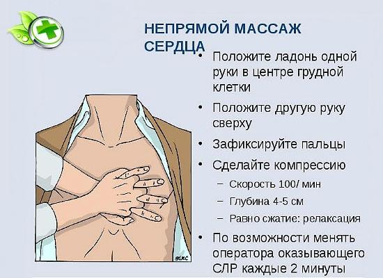 Техника проведения непрямого массажа сердца