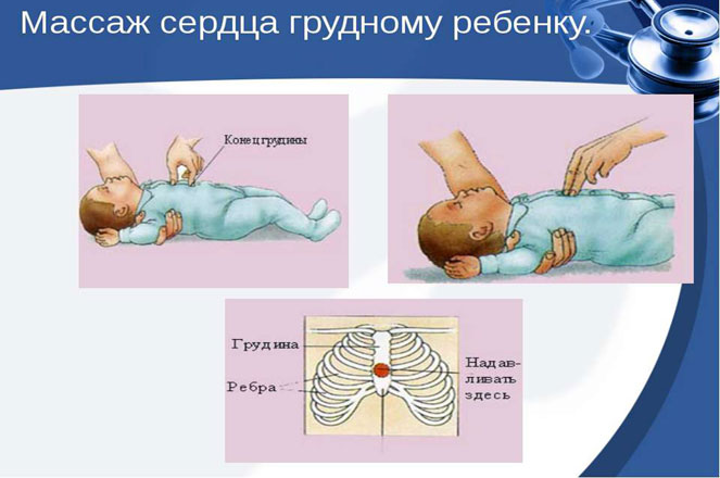Методика непрямого массажа сердца для грудного ребенка
