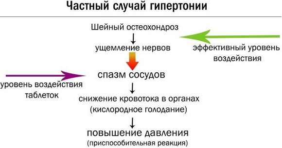 Патогенез гипертонии при ШО