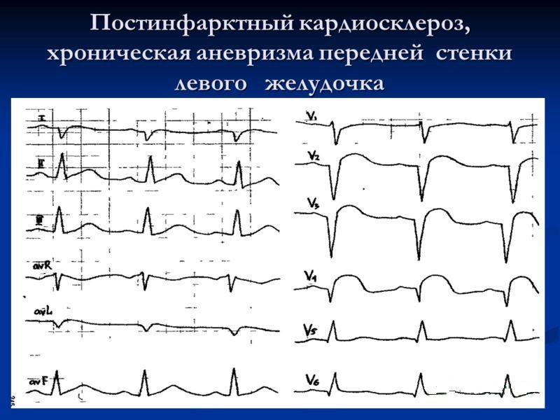 Постинфарктный кардиосклероз на ЭКГ