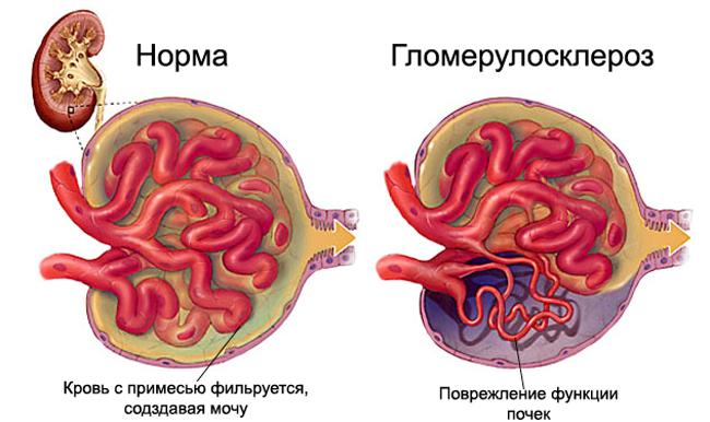 Гломерулосклероз