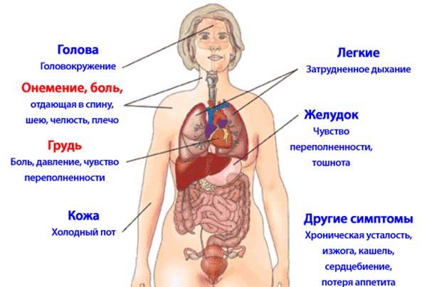 Симптоматика ИМ