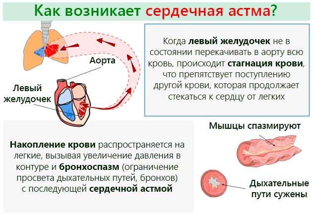 Процесс возникновения заболевания