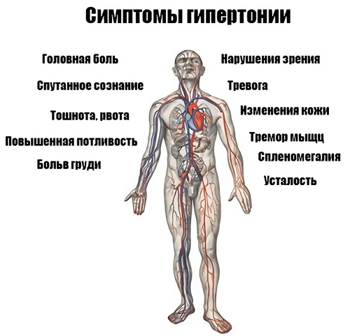 Симптомы АГ