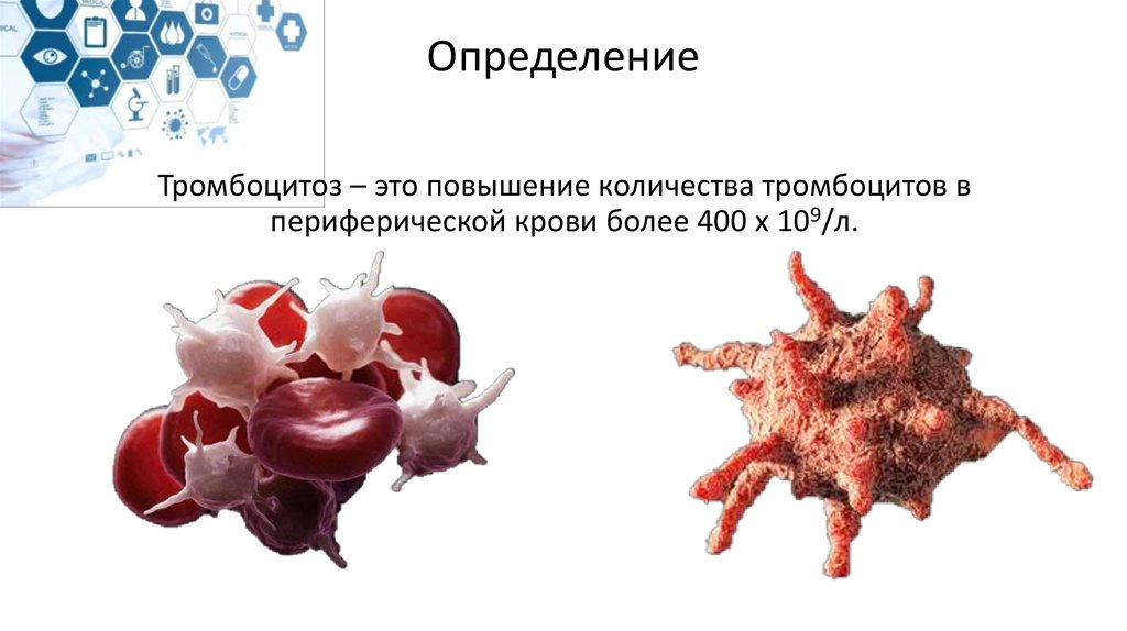 Тромбоцитемия