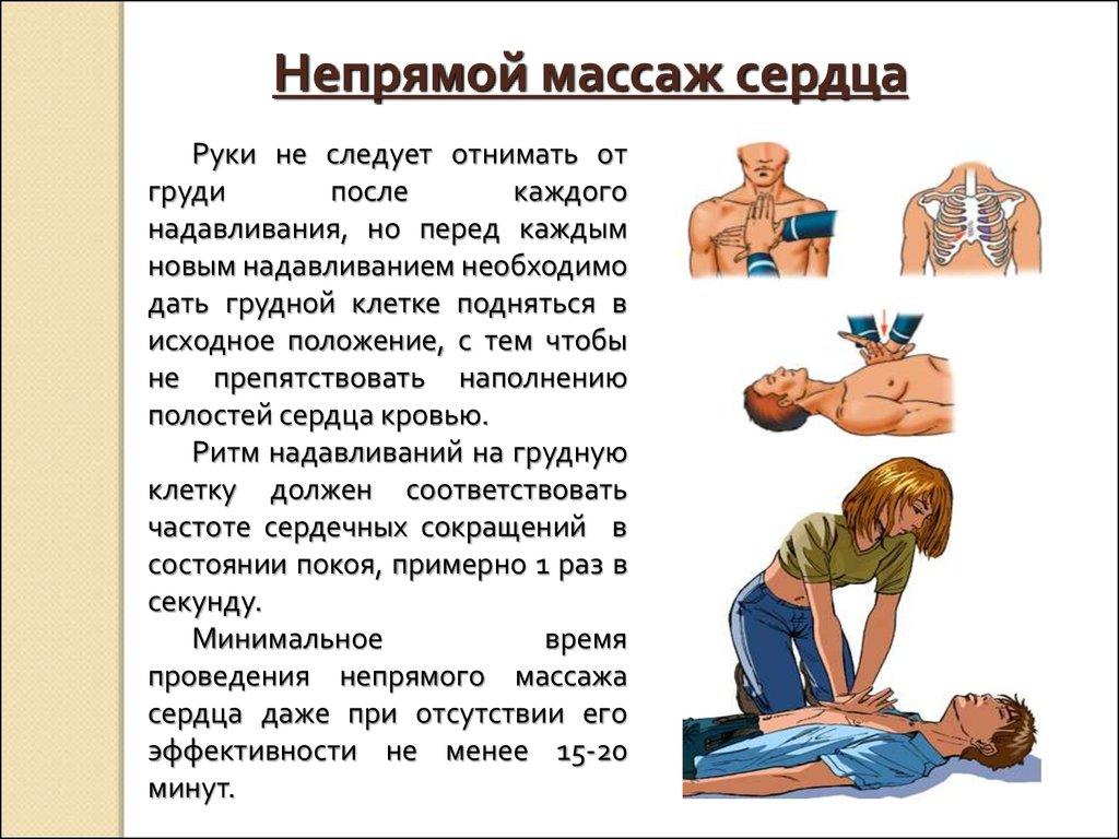 Непрямой массаж сердца